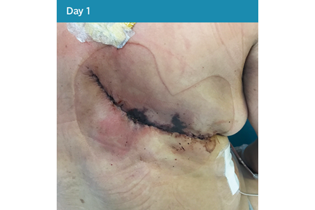14. Closed Surgical Incision - Day 1.png