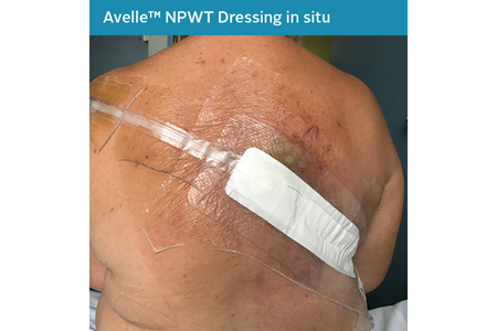 15. Closed Surgical Incision - NPWT in situ.png
