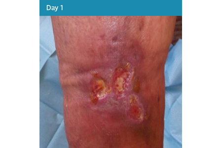 17. Mixed Aetiology Leg Ulcer Case Study - Day 1.png