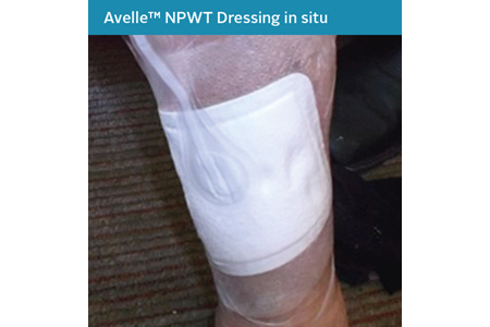 18. Mixed Aetiology Leg Ulcer Case Study - NPWT in situ.png