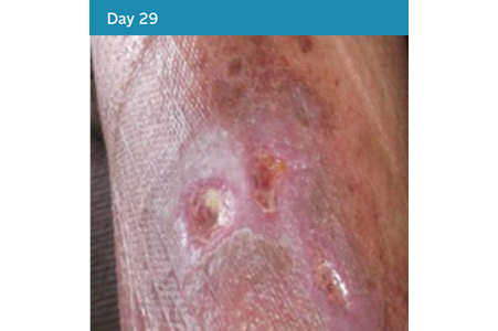 19. Mixed Aetiology Leg Ulcer Case Study - Day 29.png